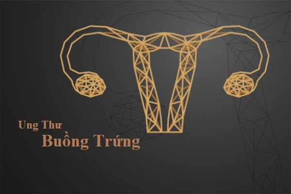 ung thu buong trung (3)